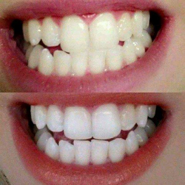 blanchissement des dents...