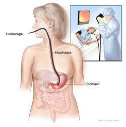 La fibroscopie