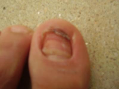 ongles des pieds qui tombent