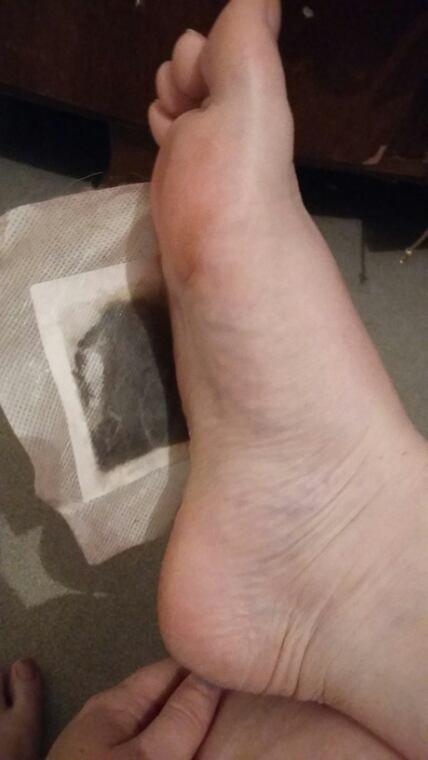 Patch detox pieds 4 ème jours