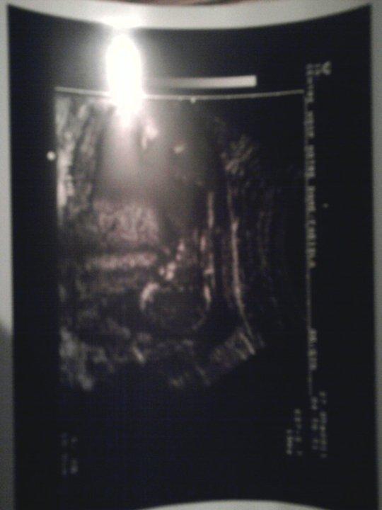 ecographie de silvano