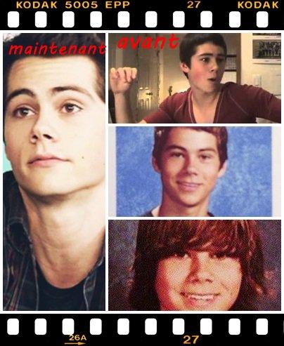 Teen wolf: A quoi ressemblait t-ils quand ils étaient plus jeunes?
