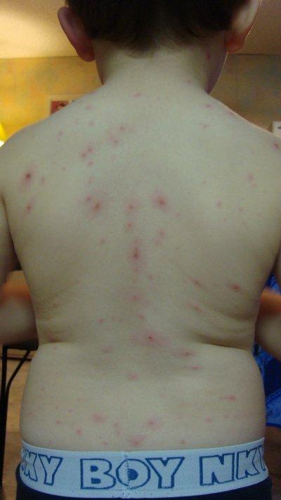 La varicelle...