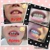 Du dentifrice bio pour des dents éclatantes