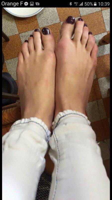 les pieds de melodie