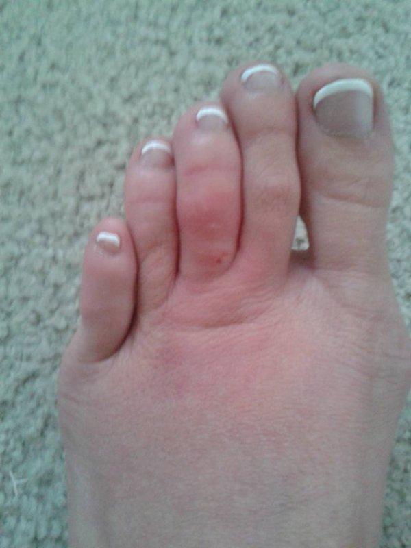 J'ai mal aux pieds :(