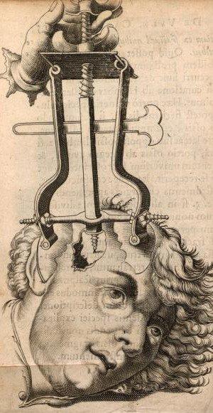 Choc opératoire