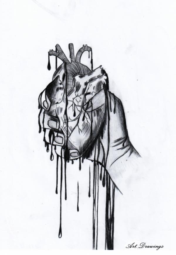 La douleur..
