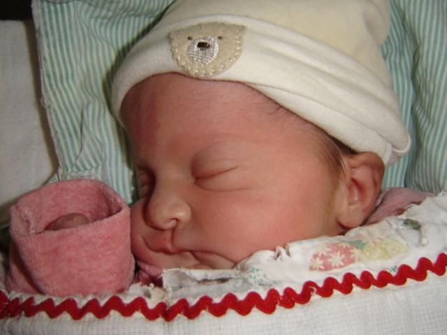 La leçon de vie d'une petite fille atteinte d'une maladie génétique rare: Le Syndrome d'Apert