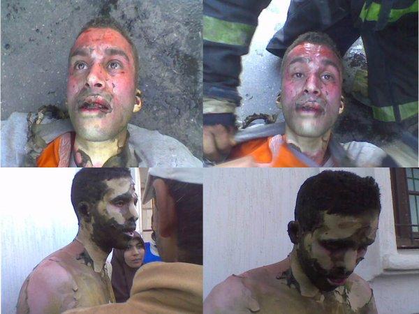 المعطلون حملة الشهادات العليا يحرقون ذواتهم احتجاجا على تجويعهم