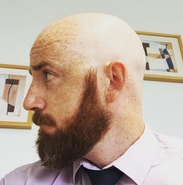 Belle tête rasée et blanche