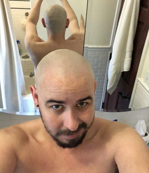 Reflet dans un homme chauve