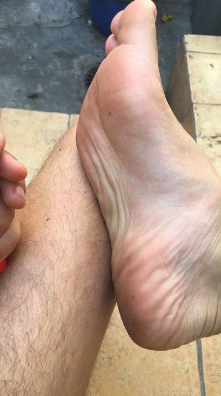 Plante des pieds d'un mec de 20 ans