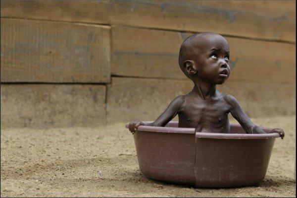 Plus de 38.000 enfants risquent de mourir de faim en Somalie...