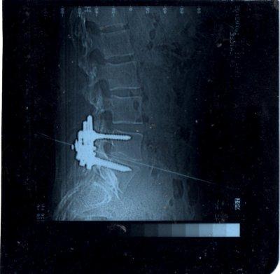 l'histoire de mon dos