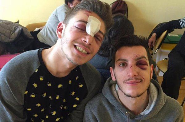 Agression homophobe à la sortie d'un club de Milan : « Traumatisme crânien, fracture du nez
