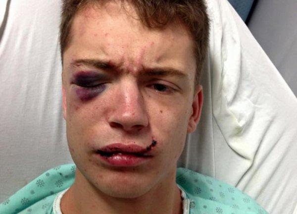 """Violente agression à Québec : """"Voici le visage de l'homophobie… Bienvenu en 2015 !"""""""