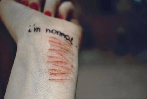I'm normal...