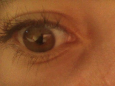 si mes eye