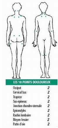 La fibromyalgie - Fibromyalgie et sommeil - (2)