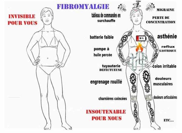 Célèbre Blog de dargent80 - Page 2 - Mon combat contre la fibromyalgie  NA89