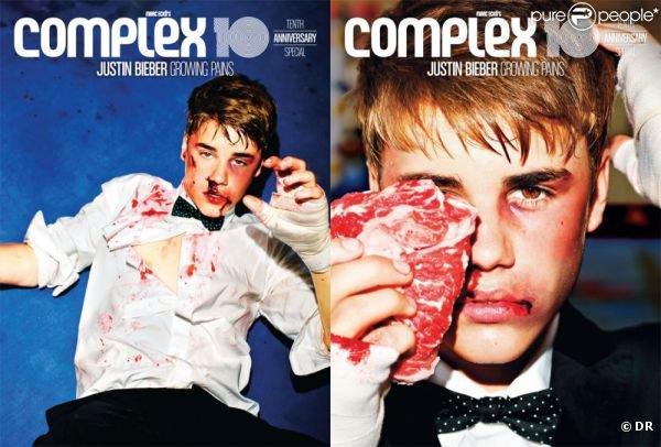 Justin tabassé par des boxeurs !