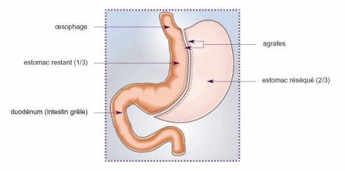 Qu'est ce que la Sleeve Gastrectomie