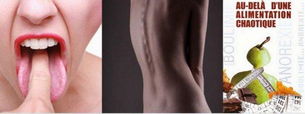 L'anorexie et la boulimie