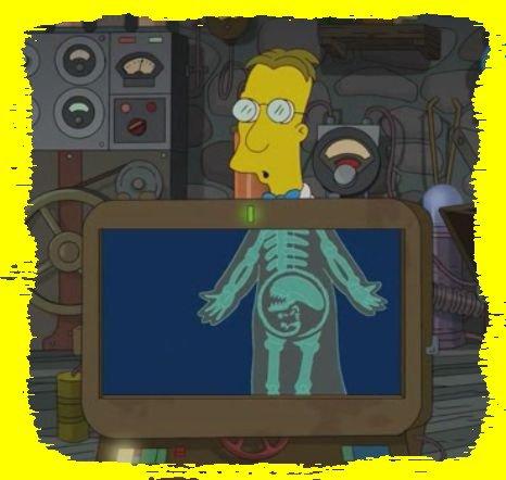 Un alien s'est glissé dans le corps de Frink ...
