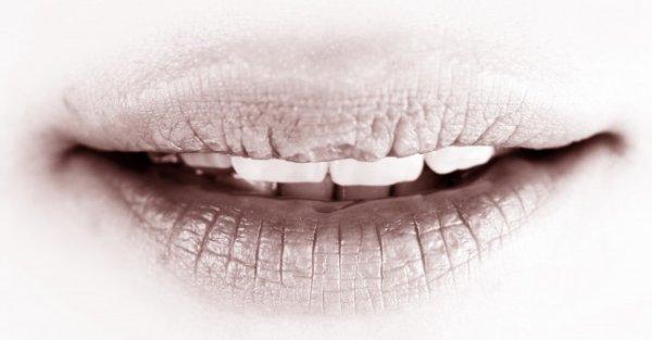 Astuce #1 : Lèvres gercées ---> A dieu !