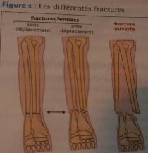 Pôle 3 : Chapitre 10 : Traumatismes et pathologies du squelette