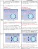 Chapitre 3. L'½il réduit : certains défauts et leurs corrections (suite 1)