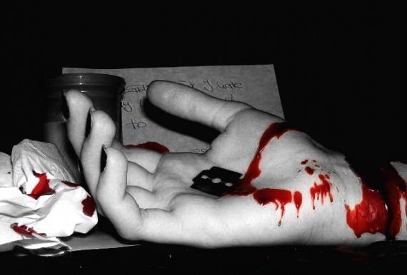 Vus que plein de personnes me disent d'aller me suicider j'irais le faire comme sa il seront tous content..