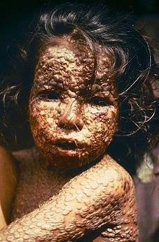 LA CONSONNANCE DE GUERRE BACTERIOLOGIQUE DANS LE GENOCIDE DES AMERINDIENS