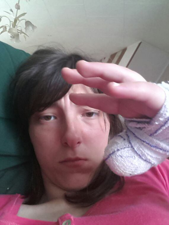 Mon doight handicaper  j ai eu un panarie