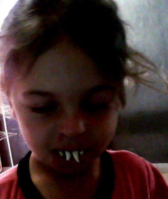 moi avekun dentier mdrrrrrr c ma jaye kil me fait faire de tot mdrrrrrrrrrrrrrrrr