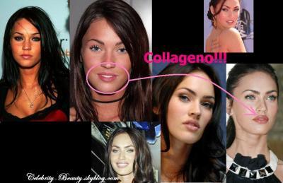 Megan Fox La Cirugia Estetica Y Las Celebridades