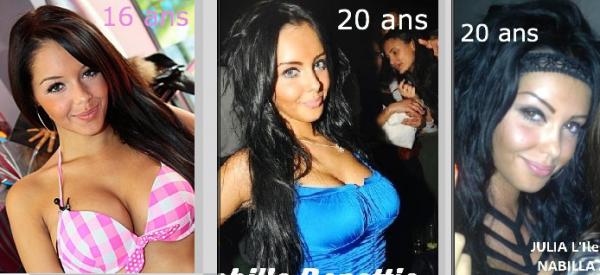 Nabilla Benattia avant après chirurgie esthétique