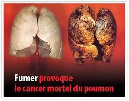 prévention du cancer !!