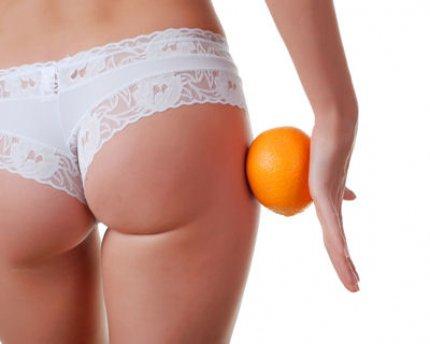 la Cellulite: ce que les femmes détestent