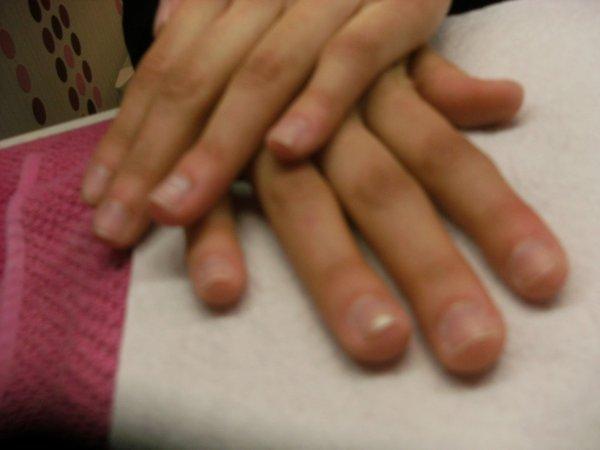 Avant les mains de Julie.