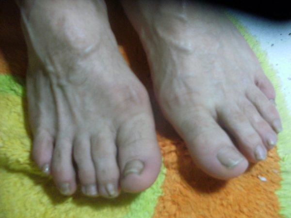 avant les pieds de alain