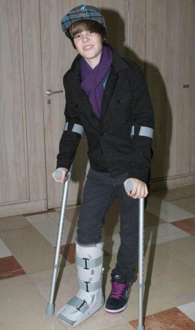 je me suis  aussi cassee la jambe    pas cool   :p