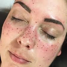 Le freckling ?