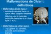 Les différents types de Chiari 1,2 et 3 en image ! (IRM)