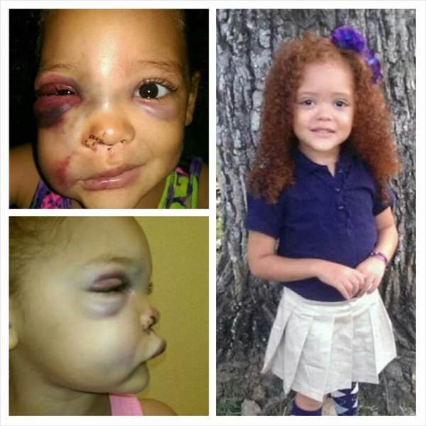 justice for avalynn