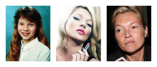 Kate Moss : beauté fatale ou pas ?