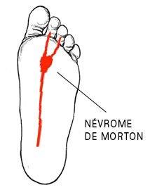 Névrome de Morton