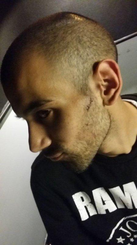 La cicatrice de Karim après la tentative de vol de sa tablette !