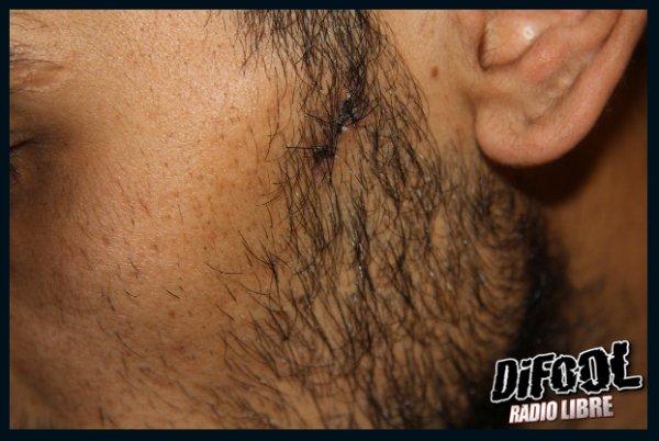 Le problème médical de la soirée : les points de sutures de Karim